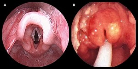 Image result for normal epiglottis vs epiglottitis