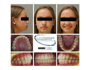 A Clear Choice Orthodontics patient