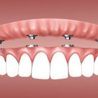 Dental Implants – Restoring One Smile At A Time