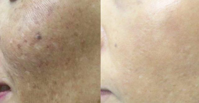 肝斑特別療程