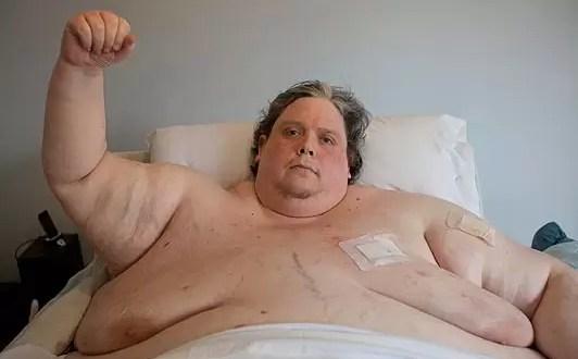 Fotos: El hombre mas obeso del mundo pesa 370 kilos