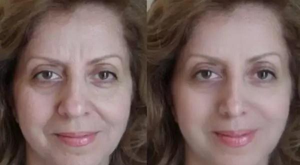 Descubre online como te quedarían las distintas cirugías estéticas