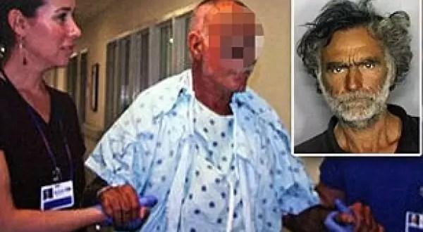 Víctima del caníbal de Miami pierde la vista