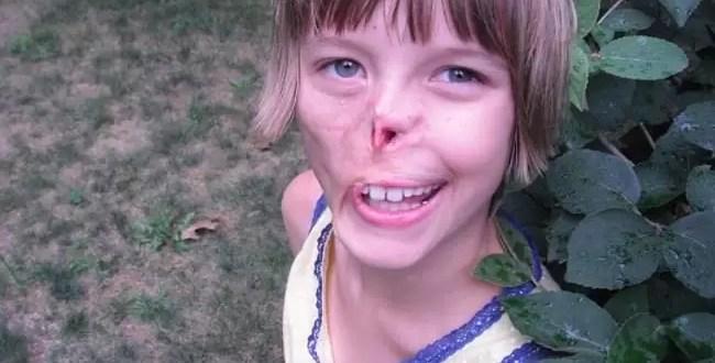 Fotos: Niña recupera la nariz que le comió un mapache