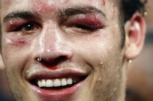 Fotos: Cómo quedó Julio Chávez Jr. luego de la pelea