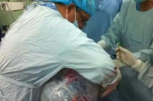 Quitan a mujer un tumor de 14 kilos del ovario
