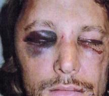 Fotos: Así quedó el ex de Halle Berry tras la paliza de Olivier Martinez