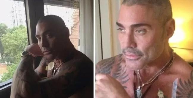 Ricardo Fort nuevamente internado
