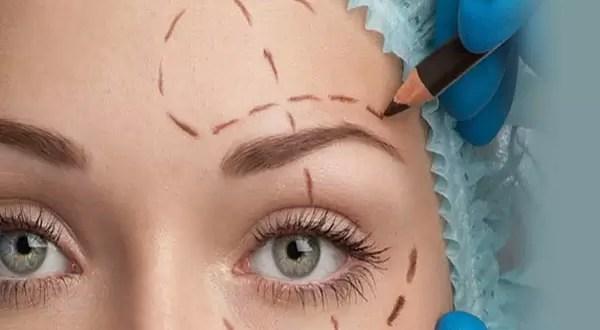 ¿Quién afronta los gastos de las cirugías estéticas?