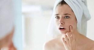 SolAcne: Cinco consejos para elegir un humectante/hidratante apto para pieles propensas al acné