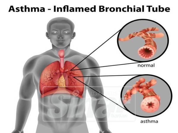 JEREBU boleh menyebabkan saluran pernafasan menjadi sempit.