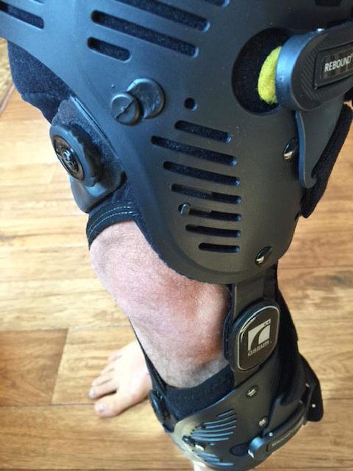 La rodilla. Foto: Twitter de Korenfeld
