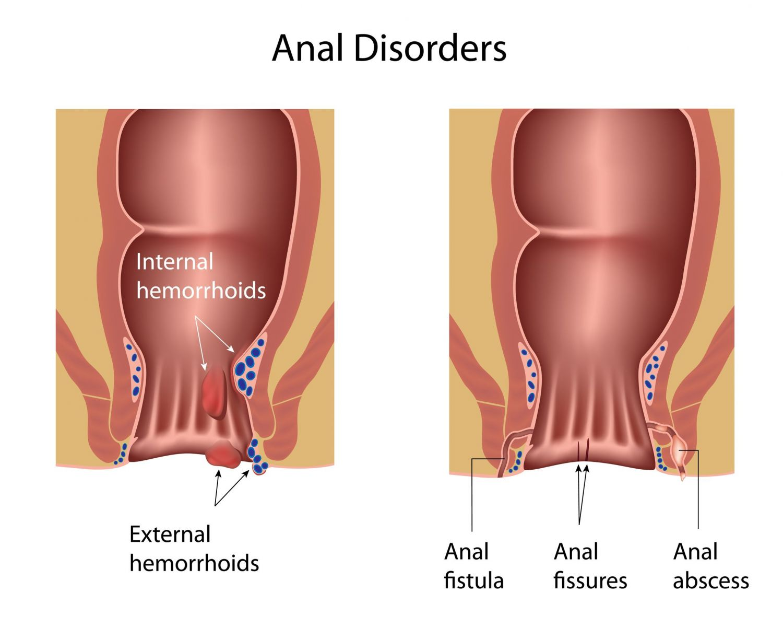 Anal Abscess Perianal Fistula Singapore Causes Symptoms
