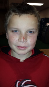 Noah, cut nose after skiing