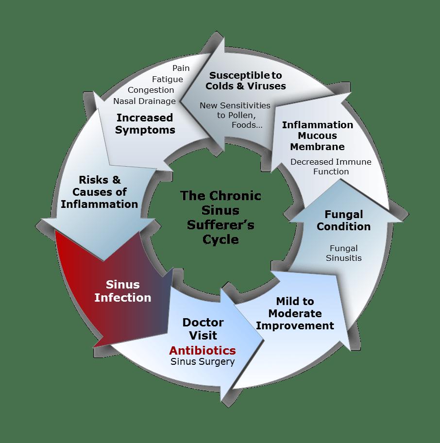 Sinus Sufferer Cycle-Fungal - Sinus Survival