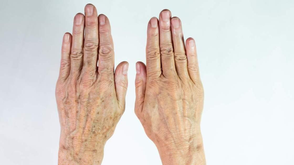 Como eliminar manchas nas mãos naturalmente