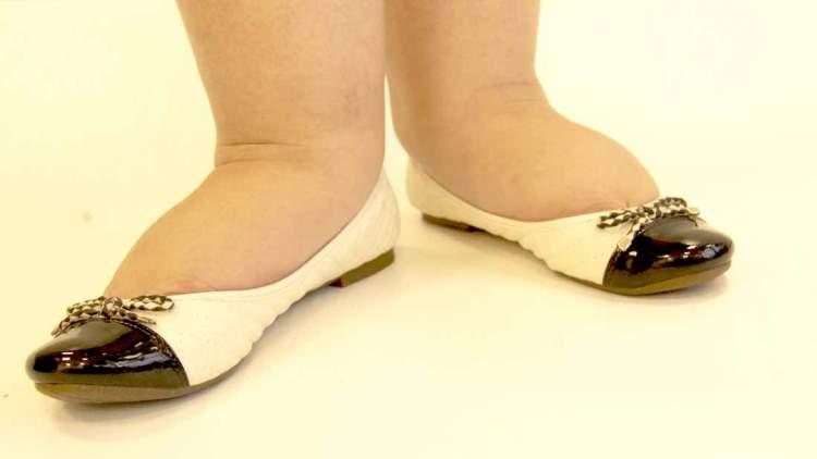 Sapatos apertados te leva a adotar um visual de mau gosto