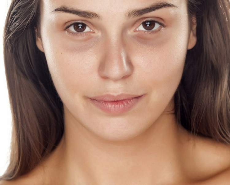 Mulher com olheiras