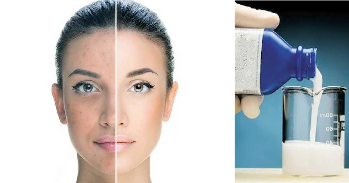 Veja como o leite de magnésia na pele pode ser muito benéfico