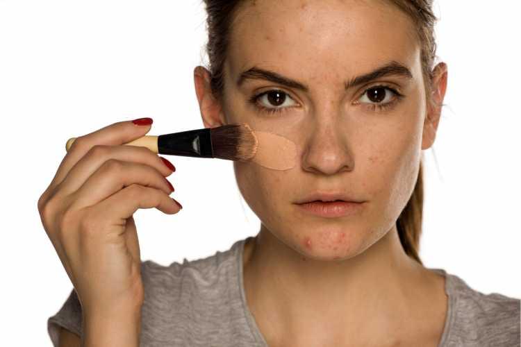 Aplicar base ajuda a disfarçar manchas no rosto
