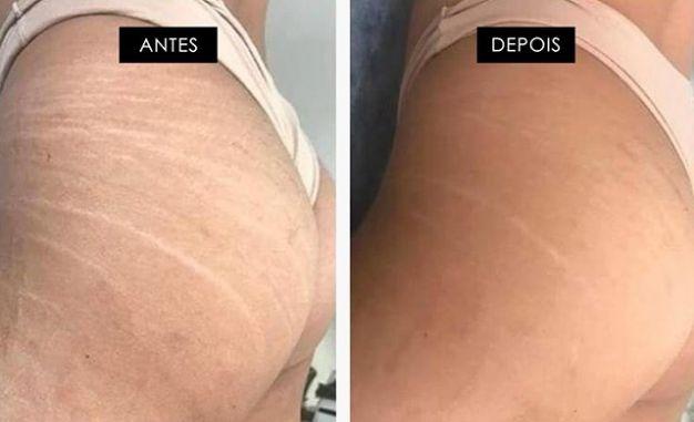 Mulheres famosas revelam usar novo creme para combate as estrias