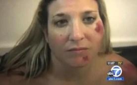 Fotos: Policías golpean brutalmente a una mujer