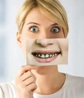La enfermedad bucal más triste de todas