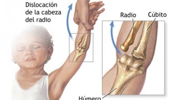 Las lesiones más frecuentes en los niños.