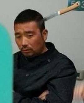 Esperó tranquilo su turno en el hospital con un cuchillo clavado en la cabeza
