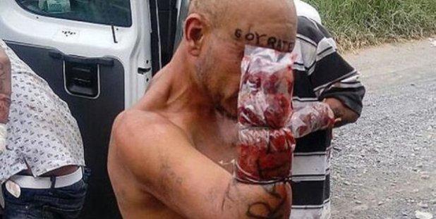 """El """"Grupo de élite Antirratas"""" hicieron justicia por mano propia amputandole las manos a ladrones"""