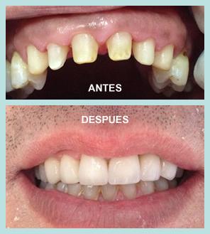 cirugia_oral2
