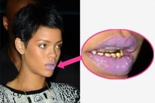 Rihanna se pone dientes de oro - Ver Fotos