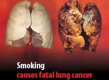 Aumenta el cáncer de pulmón en mujeres españolas