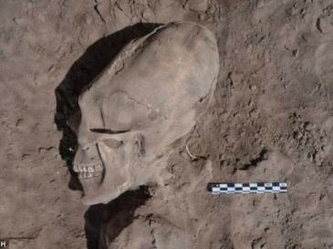 Insólito: Descubren cráneo con forma de alien - Fotos