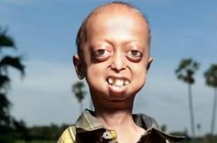 Insólito: Niño con cuerpo de hombre de 110 años-1