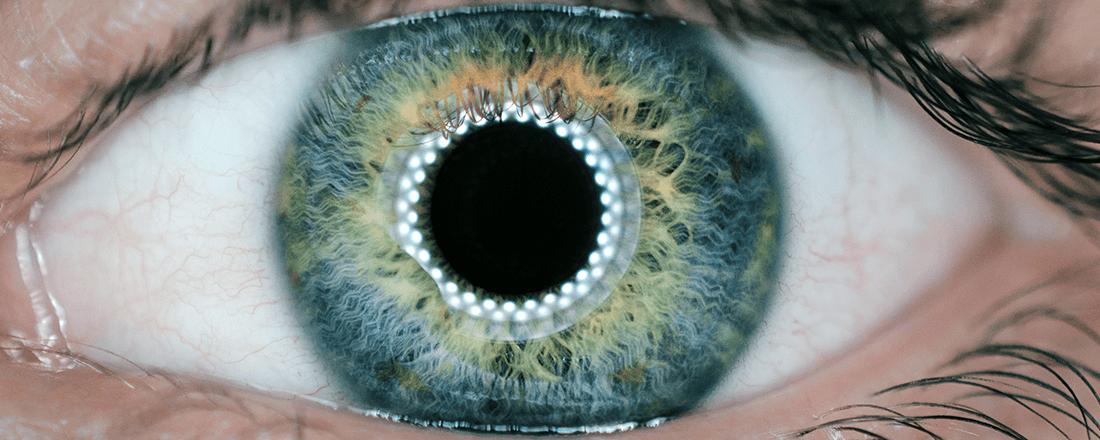 Retina Ring