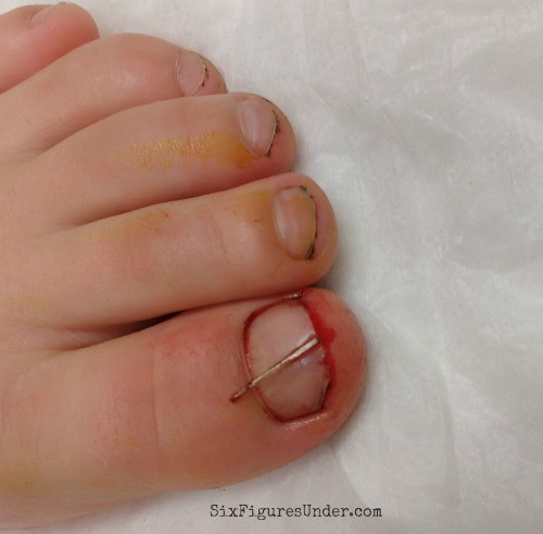 showing-how-sliver-was-under-toenail