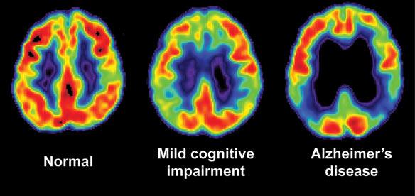 alz-brain-scan_orig