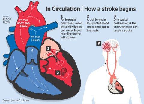 clot-atrial-fibrillation