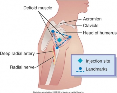 deltoid-injection-anatomy