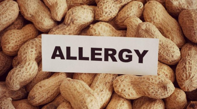 child food allergies