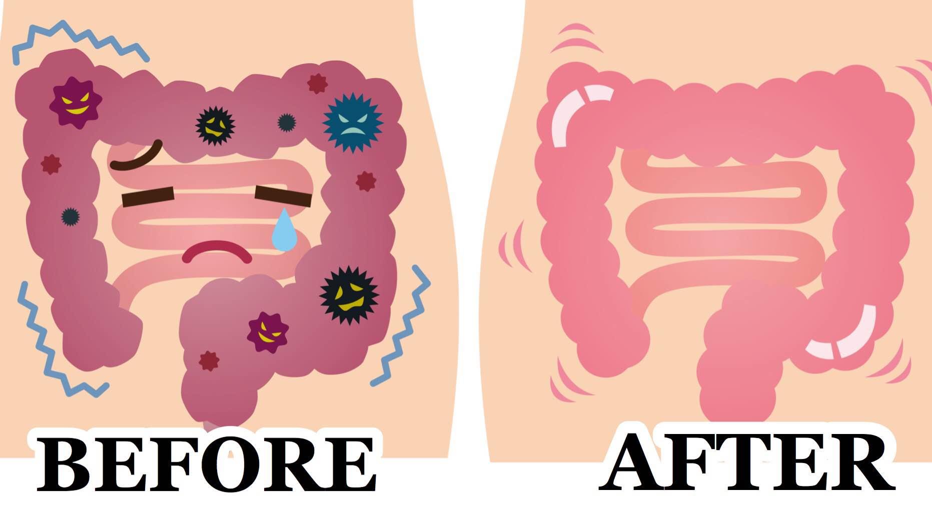 Colon Detoxification Myth Vs Science