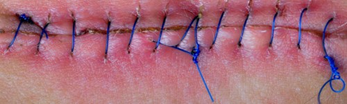 Wound With Stitches