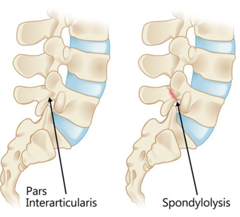 Back Stress Fractures