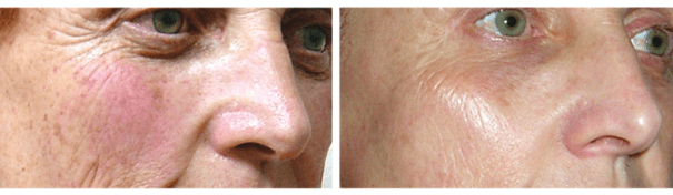 ClearLift: Q-Switched Pixel Laser Treatment results