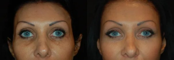 Before and after treatment of under eye bags