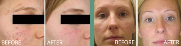 Laser Genesis for Acne before and after photos