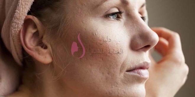 علاج حب الشباب في الوجه بسرعه و اسرع طريقة للتخلص من حب