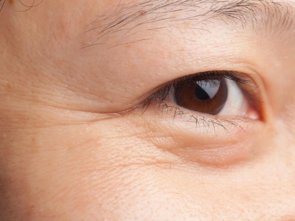 Top 10 Best Eye Creams to Prevent Wrinkles