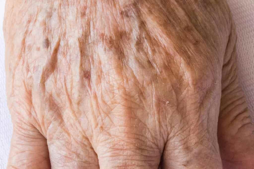 Lentigo solaris, pigmentstoornissen van de huid, ouderdomsvlekken, levervlekken, zonschade